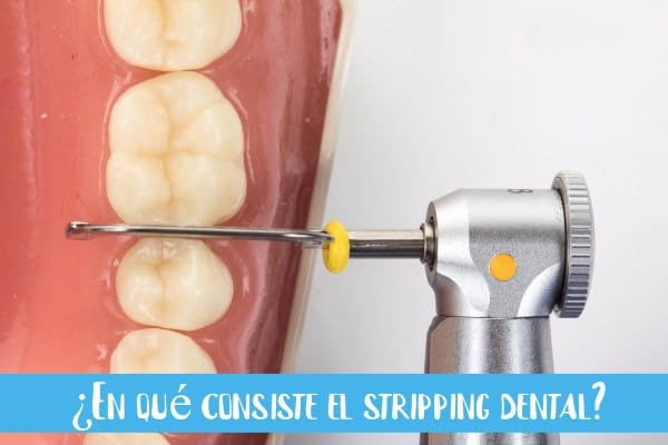 lima-de-stripping dental